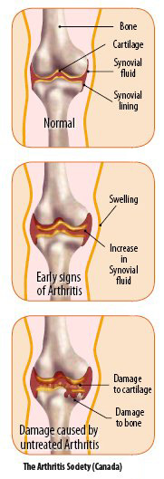 Damaged Arthritis