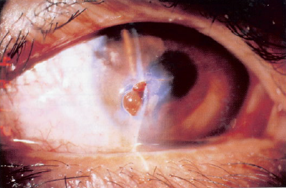Corneal laceration with prolapse of iris