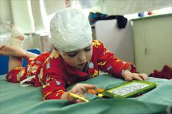 Neurology : Video EEG monitoring